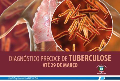 Prefeitura de Limeira faz busca ativa de pacientes com tuberculose