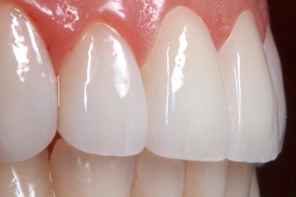 Quer ter um sorriso perfeito? Siga as recomendações do especialista para ter melhores resultados com facetas e lentes dentais